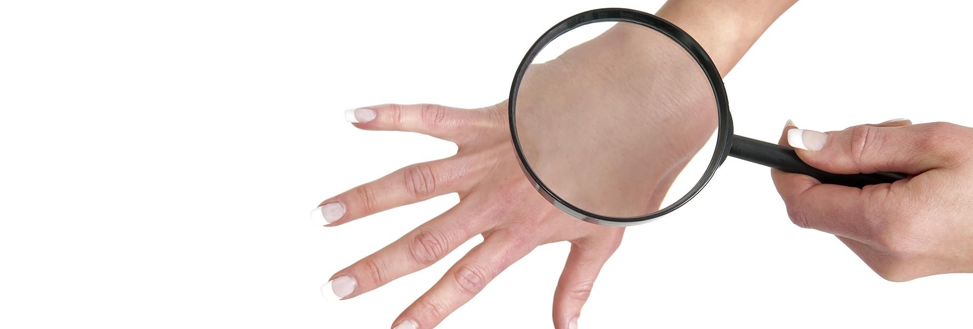 Fakta Seputar Kanker Kulit Yang Para Wanita Harus Ketahui ...